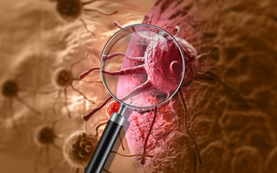 Cancer stem cells killed in 24 hours